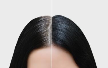 Beyaz Saç Telini Koparmak Beyazları Arttırır Mı?