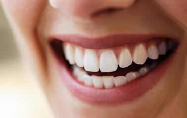 Dişlerinizi Korumanın 6 Günlük Adımı